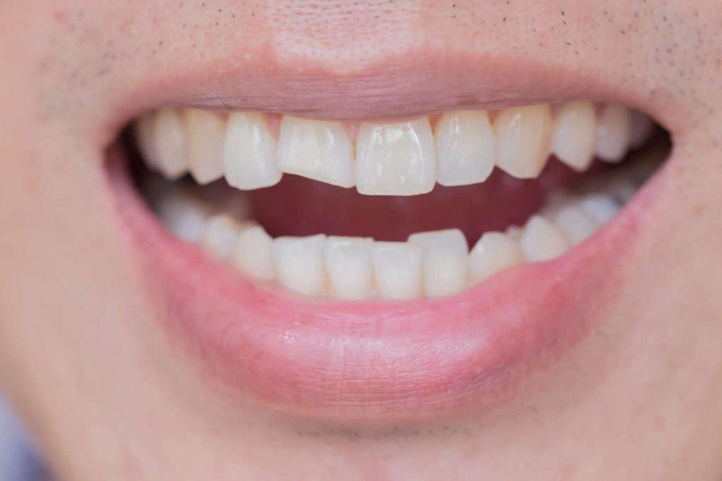 What to do if you have chipped teeth